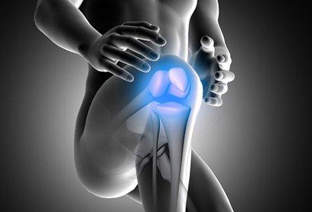 SAC and Arthritis